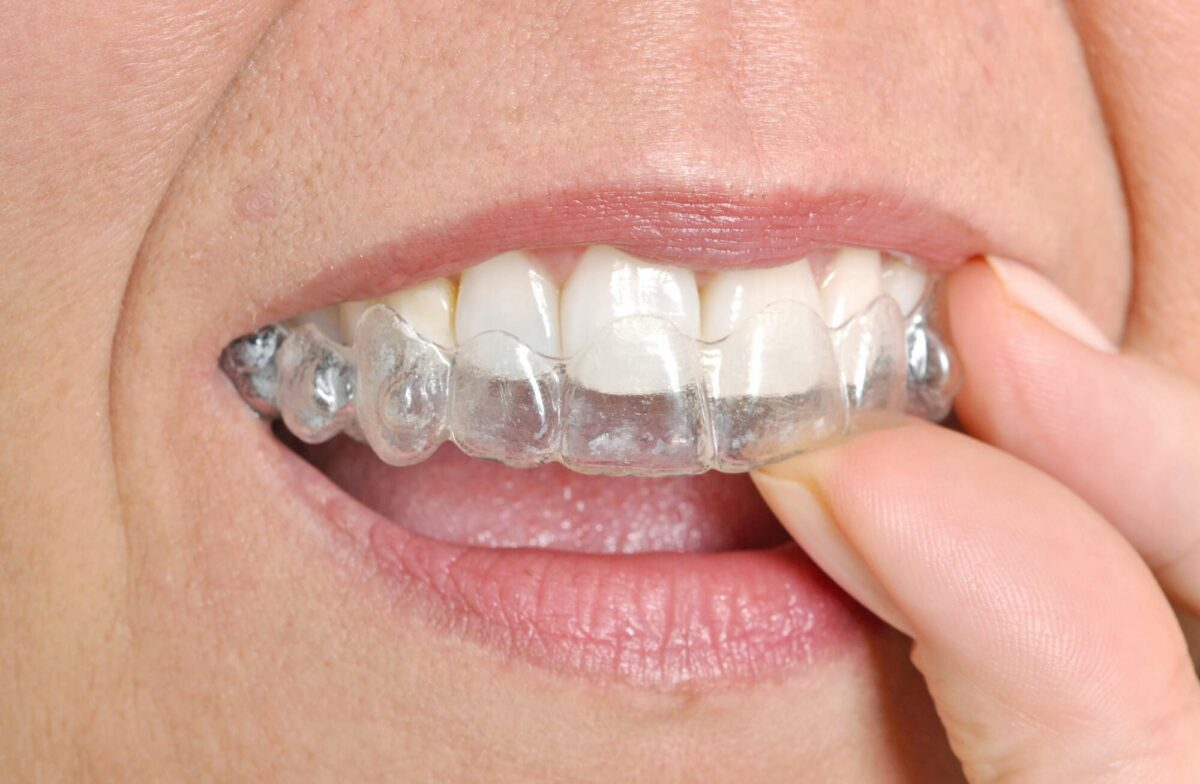 greenville invisalign patient placing clear aligner trees